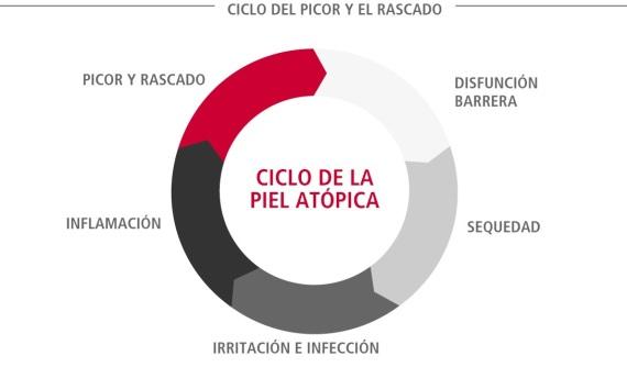 ciclo-dermatitis-atopica