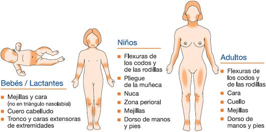 Anti psori nano de la psoriasis las revocaciones